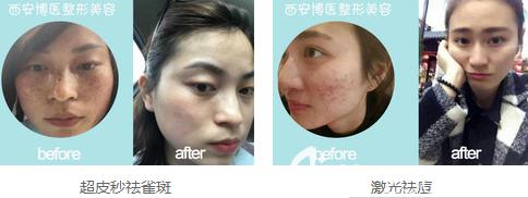 西安博医皮肤美容案例