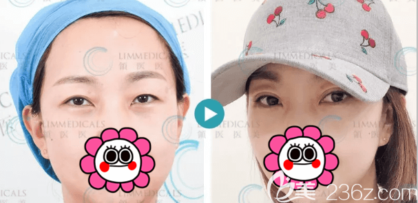 北京领医医疗美容诊所日式无痕双眼皮案例