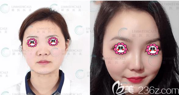 北京领医医疗美容诊所隆鼻案例