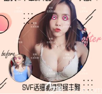 北京京韩王沛森医生自体脂肪丰胸案例