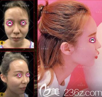 北京京韩张振医生膨体隆鼻案例