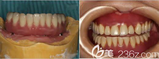 我看过武大口腔医院价格表后,去武汉清华阳光口腔让陈清华做了全口数字化3d导板种植牙