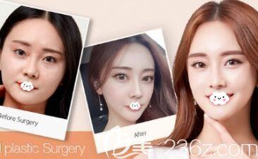 韩国原辰整形外科医院轮廓案例图片