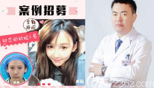 刘广志医生和隆鼻案例