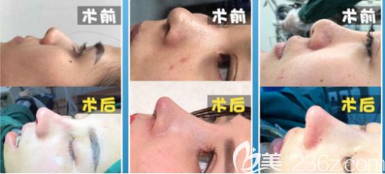 王志云医生隆鼻案例