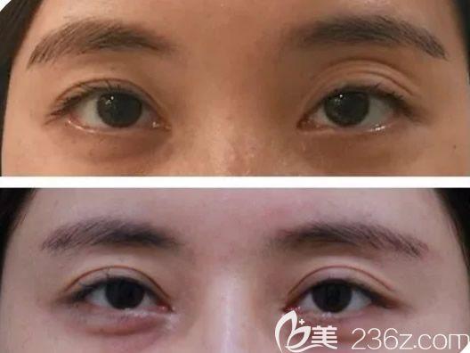 呼和浩特京美马晓艳双眼皮修复案例