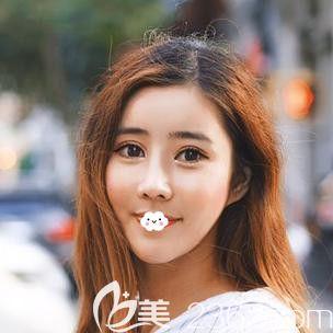 大方的将我找韩国ID整形医院做上下颚手术将突嘴矫正后3个月又来做假体隆鼻的故事分享