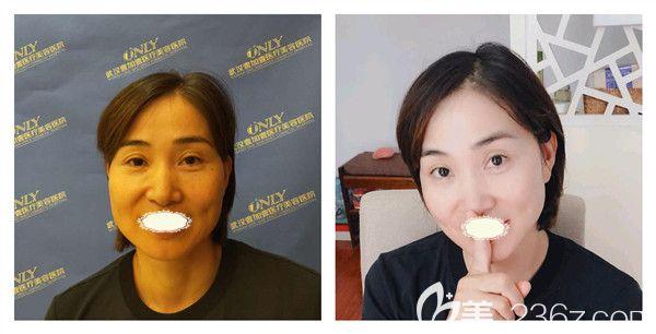 武汉壹加壹王政祥医生面部线雕术后10天案例对比图
