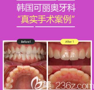 韩国可丽奥牙科医院牙齿隐形矫正案例