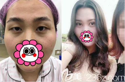 北京薇琳王小东医生PARK法艺术重睑美眼术案例
