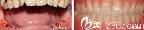 西安诺贝尔口腔怎么样?看西安诺贝尔牙科赵和平种植牙前后效果图