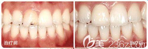 西安诺贝尔牙科靠谱不?看李江院长牙齿美白修复前后对比图