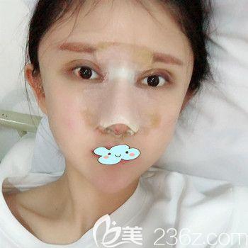 武汉美都张召医生假体隆鼻+丰太阳穴术后7天效果图