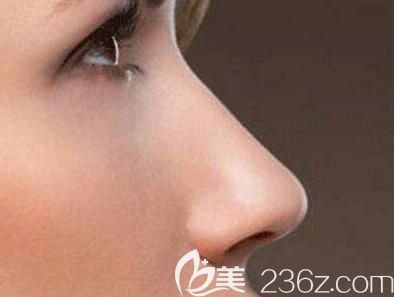 隆鼻假体需要10年要更换一次?