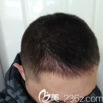 武汉美都熊雯主任做了无痕发际线种植1000单位后告别M型脱发变成小哥哥