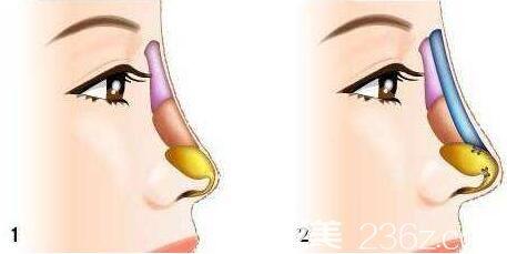 隆鼻取出假体后鼻子跟以前一样吗?