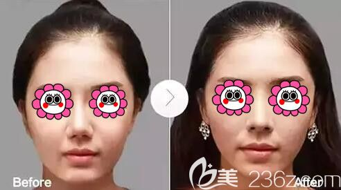 隆鼻假体取出真人案例对比