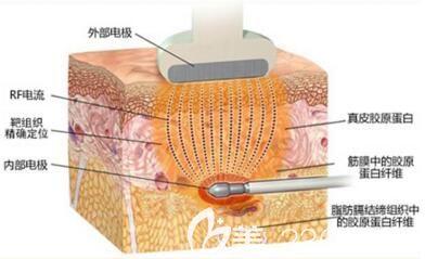 激光溶脂作用功能详细介绍