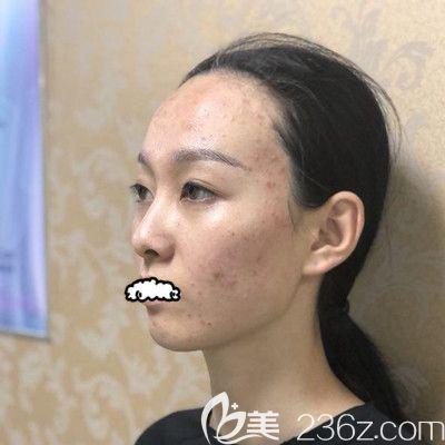 天津联合丽格第三医疗美容医院刘嵋术前照片1