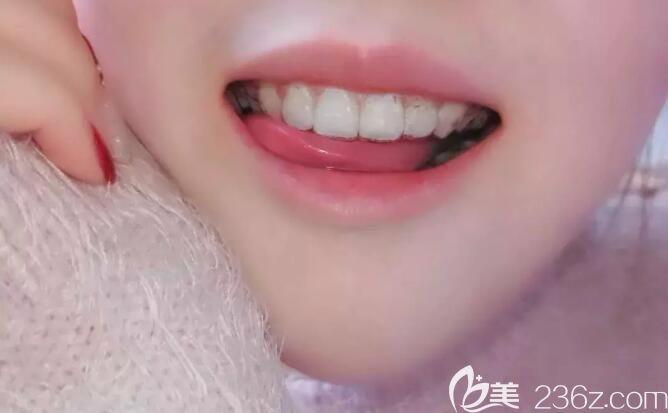 嘴突在上海雅圣口腔做了牙齿矫正 515天效果让我不后悔没有选择上海九院正畸