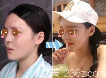 上海华美医疗美容医院圆脸隆鼻标准