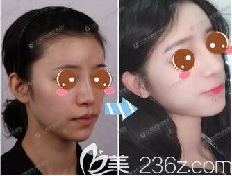 上海华美医疗美容医院椭圆形脸隆鼻标准