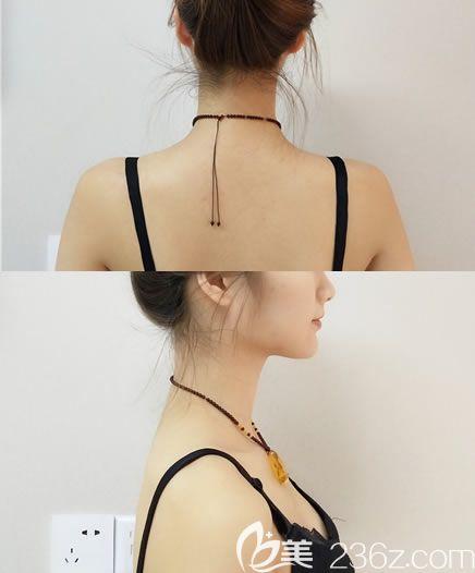 宁波卡丽注射瘦肩针案例即刻效果