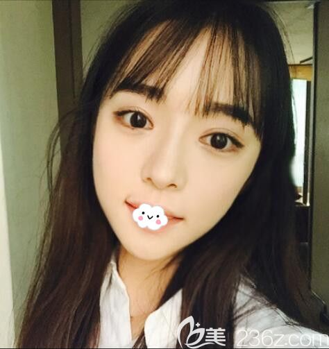 韩国和国内整鼻子价格相差不多找韩国原辰整形外科医院做假体隆鼻+自体脂肪丰面