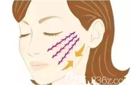面部线雕之后会导致面部变得僵硬吗?