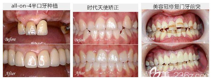 惠州致美口腔好不好?种植牙、正畸及牙齿修复案例来验证