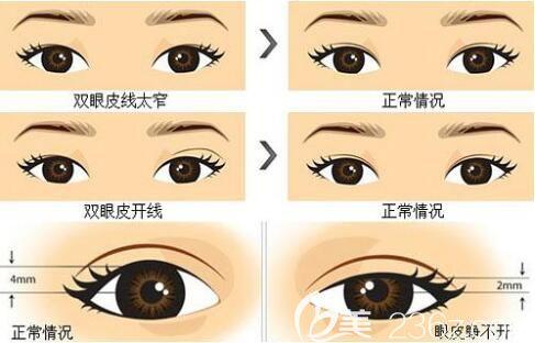 上海哪家做双眼皮修复比较好?
