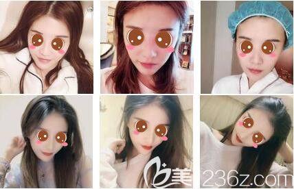 上海艺星医疗美容医院鼻综合真人案例