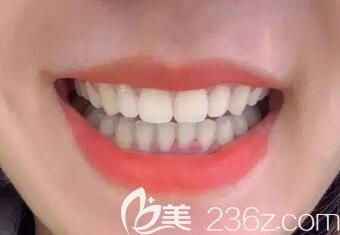正畸马拉松结束,在郑州拜博口腔做陶瓷托槽矫正后我终于能大方的开口笑啦!