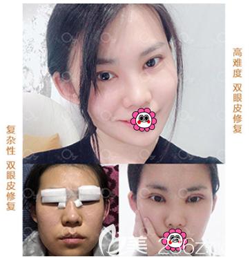北京亚馨美莱坞张海明眼修复案例