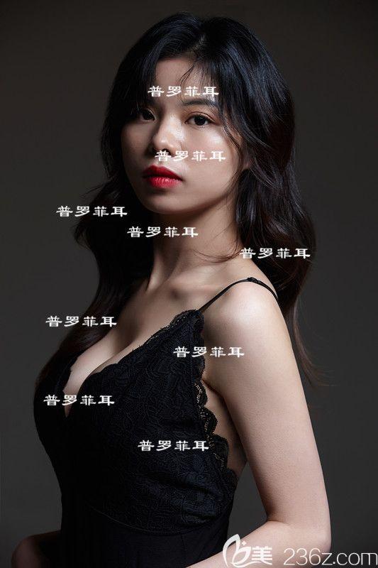 再见平胸,韩国Profile普罗菲耳郑在皓假体丰胸,性感气质极了