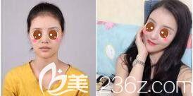 上海华美隆鼻真人案例