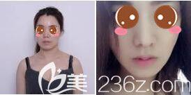 上海伊莱美隆鼻真人案例