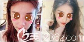 上海艺星隆鼻真人案例
