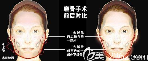 脸颊颧骨突出+下颌骨宽大磨骨手术示意图