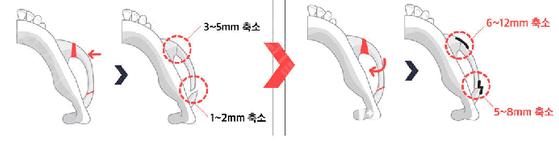 韩国原辰内窥镜颧骨缩小手术示意图