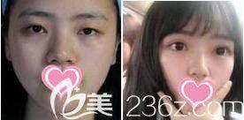 上海愉悦美联臣医疗美容医院眼综合真人案例