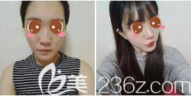 上海愉悦美联臣医疗美容医院鼻综合真人案例