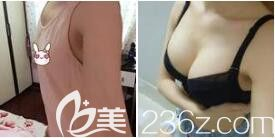 上海愉悦美联臣医疗美容医院假体隆胸真人案例