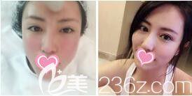 上海愉悦美联臣医疗美容医院射频美肤真人案例