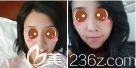 上海愉悦美联臣医疗美容医院自体脂肪面部填充真人案例