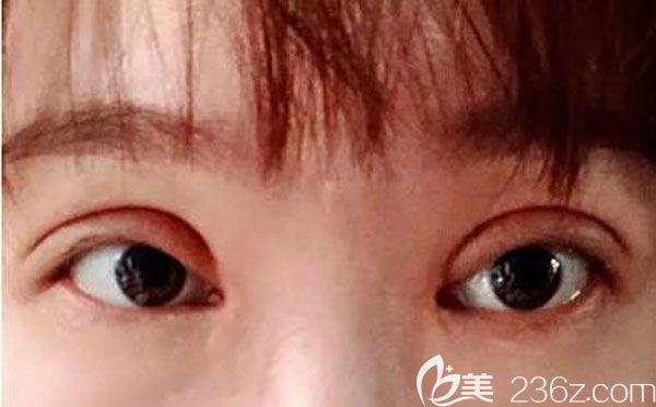 割双眼皮手术第三天眼睛不是很肿