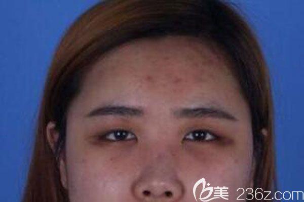 在爱丽诺整形割双眼皮手术前