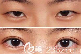 长春中妍整形美容医院王洋眼部综合案例效果对比图