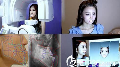 韩国面部轮廓术前检测设备更先进