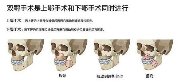 示意图了解双鄂手术可进行突嘴矫正